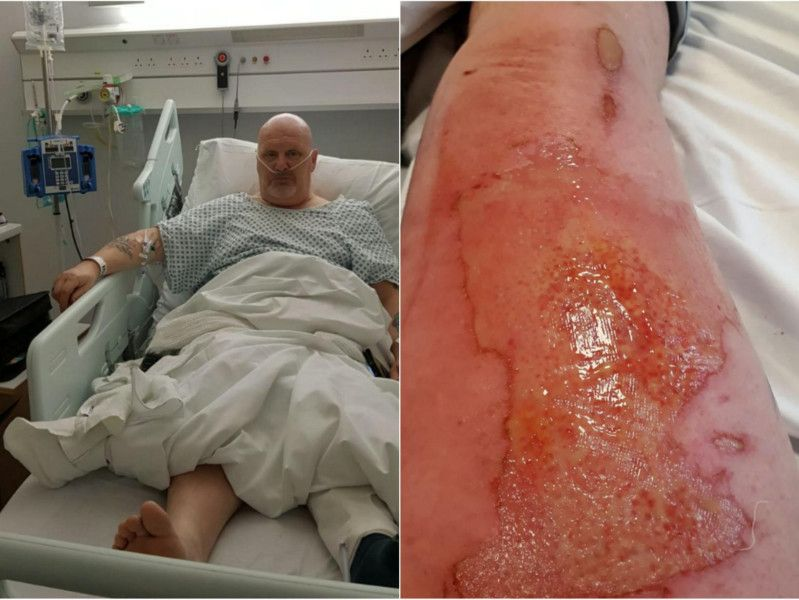 Leeds man issues warning after vape battery exploded in his pocket and set leg on fire thumbnail