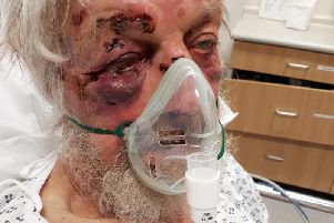 """An 80-year-old pensioner who suffered multiple injuries, including a broken wrist, nose and cheekbone in what detectives have described as a """"nonsensical"""" attack in a street in Penge, south-east London."""