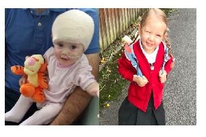 Lucy as a baby after being diagnosed with a brain tumour, and Lucy aged five.