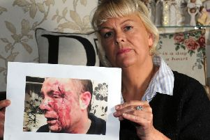 Diane Timms is fighting for justice after an attack on her son in Doncaster in January 2017