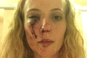 Ms Piticii was left with injuries all over her body including her head, eye and neck