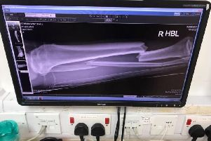 An x-ray.