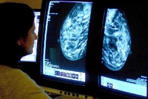 Only 67.9 per centof women in the Preston area due a breast screening took up the offer