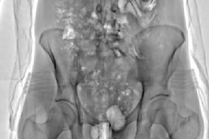 The images produced by the scanner provide a level of detail inside the body that has not been seen before in the Prison Service.