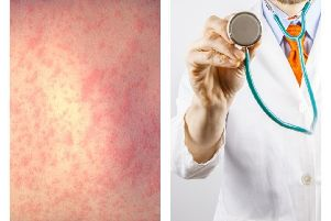 There has been a measles outbreak in West Yorkshire.
