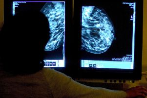 It was revealed in February that the local NHS was struggling to see patients referred for a breast cancer scan quickly enough.