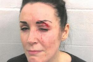 Alicia Crook following the unprovoked assault