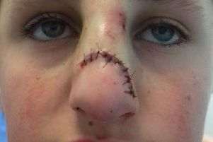 Casey Murthick was attacked in Cross Flatts Park, Beeston.