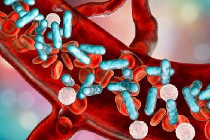 Sepsis is a serious condition that can be fatal if it isnt spotted and treated quickly.