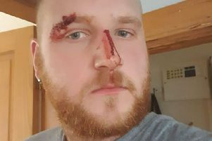 Stephen Brook, 27, of Liversedge, was attacked by a man with a screwdriver on Saturday.