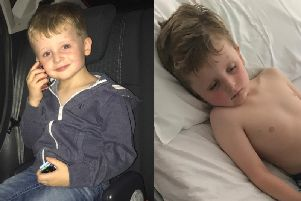 Oliver Quirke picture before and after he was left paralysed by a rare condition.