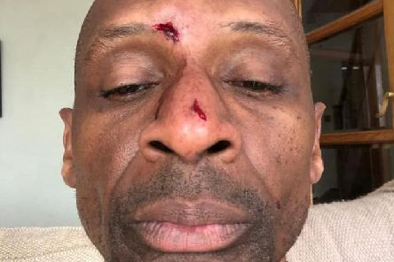 Andy Abraham suffered head injuries during a fall at home