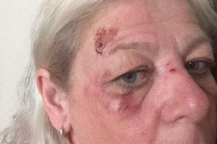 Yvette Talbot was mugged last week while walking home from work.