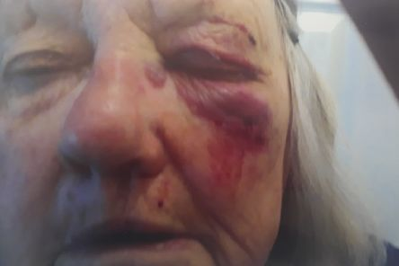 The injuries caused to the pensioner's face.