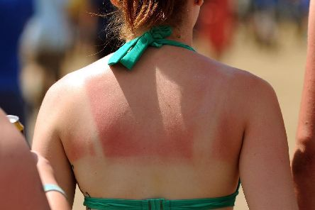 After a sunny Easter bank holiday, many people will be feeling a bit sore and sunburned today