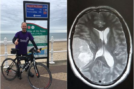 Surgeons took more than seven hours to remove a tumour the size of an apple from Chris Bexon's skull