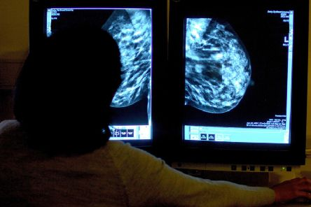 Breast screening appointments are vital to the health of women, according to campaigners.