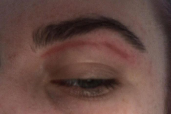 Sheffield Woman Left Scarred After Eyebrow Wax At Superdrug