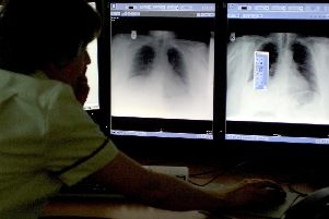 Dozens of tuberculosis cases reported in Calderdale in recent years. Picture: Rui Vieira