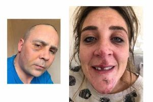 Gavin and Suzanne Webb with their assault injuries
