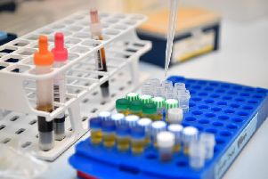 The new urine test could be just as effective as the smear test.