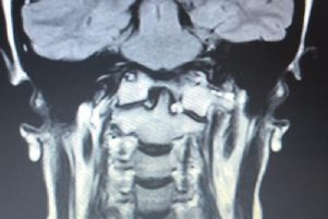 MRI scan taken from Spire South Bank Hospital Worcester'which shows how Rachel Pighills' brainstem is bent due to it being compressed by the odontoid. It also shows how her brain is sagging and her c1 vertebrae is assimilated to the skull base