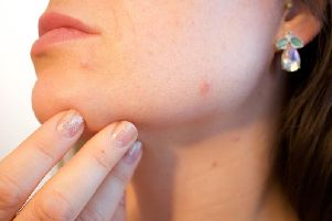 A sluggish thyroid can cause dry skin
