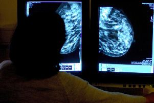 Hospitals are struggling to cope with a spike in breast cancer referrals, despite putting on extra capacity.
