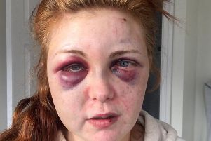 Jenna Hurley was left covered in bruises after an attack by boyfriend Mark Whiteside, who has been jailed for 14 months