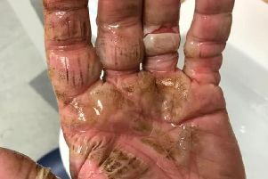 JTF customer Helen Shelton said her father suffered serious burns after a Turbo Sparkler exploded in his hand on Sunday (November 3) Pic: Helen Shelton