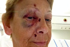Karen suffered head and facial injuries in the incident