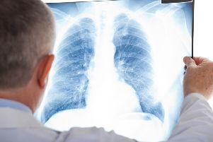 Lung cancer treatment in the UK lags behind other high-income countries.