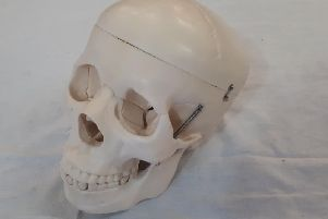 Made for medical students, his hinged skull opens for study.  He is 48