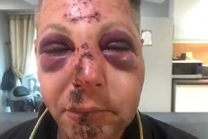 Police are appealing for information after a man was beaten up in Hucknall on Saturday.