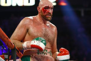 Tyson Fury was cut badly in his fight with Otto Wallin in Las Vegas. Picture: Mikey Williams/Top Rank.