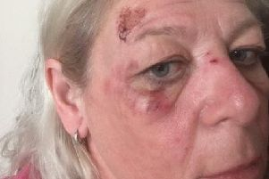 Yvette Talbot was attacked on her way home from work last night.