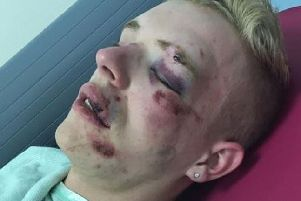 Ryan Williams, 22, was attacked near McDonald's in Friargate, Preston, Saturday, July 13. Pic credit: Ryan Williams