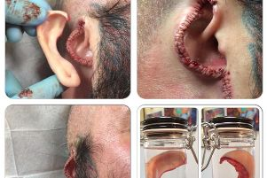 An ear cut off from a customer of tattooist Brendan McCarthy, 50, from Bushbury, Wolverhampton, who ran Dr Evil's Body Modification Emporium in Wolverhampton and who appeared at Wolverhampton Crown Court on Tuesday where he admitted causing grievous bodily harm to three customers by carrying out a tongue-splitting procedure and removing an ear and a nipple.