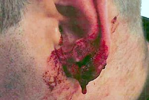 Police officer's ear which was bitten by Daniel Ward, 26, of Norton Hill, Runcorn, who bit a hole in the officer's ear as he attempted to evade arrest. Ward has been jailed at Chester Crown Court on Monday and jailed for 13 years, with an extended licence period of four years.
