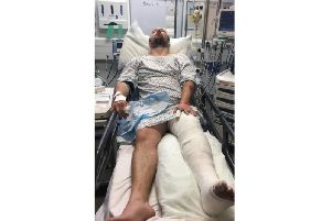 The family of a hit-and-run victim are calling for witnesses after a cyclist was left with horrendous injuries.