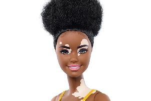 Barbie doll with the skin condition vitiligo