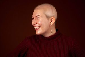 Emeline Gilhooley took part in a professional photoshoot not long after her brain tumour surgery. Picture by  Sophie Mayanne