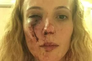 Anca Si Piticii was attacked outside her home