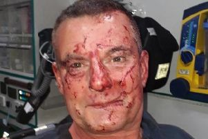 Paul Blake, 56, was beaten by thugs after leaving the Bow Legged With Brass pub in Halifax.