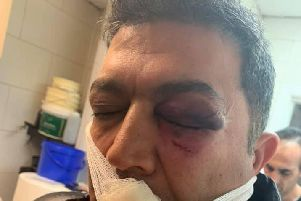 Mr Shadpour's shocking injuries